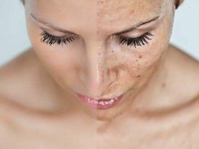 Пигментные пятна на лице: основные типы и причины появления