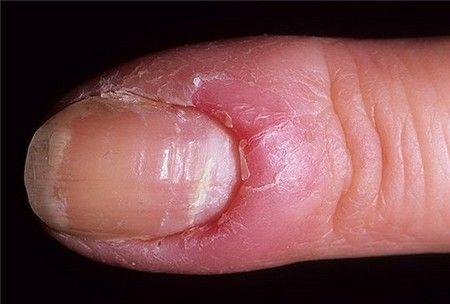 Воспаление ногтевой пластины