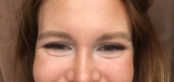 Морщинки под глазами