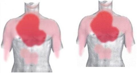 Область боли при инфаркте