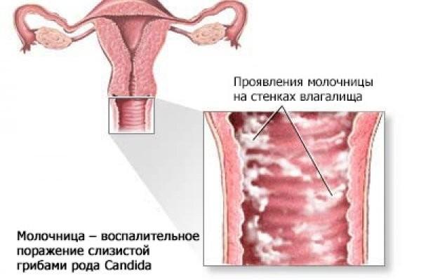 Как проявляется молочница