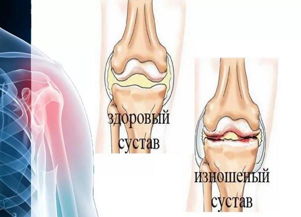 Здоровый и изношенный суставы