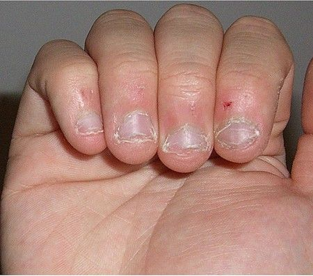 Привычка обгрызать ногти вызывает  заусеницы
