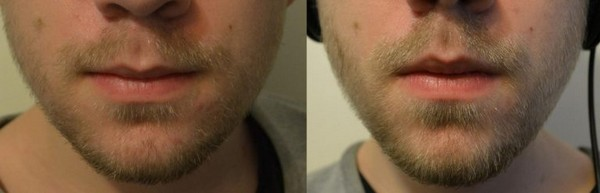Рост бороды после касторки
